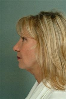 Facelift Before Photo by Robert Zubowski, MD; Paramus, NJ - Case 23721