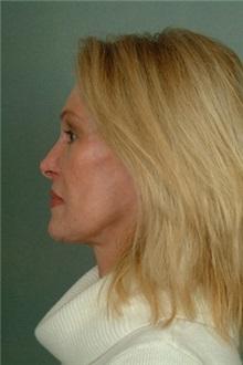 Facelift After Photo by Robert Zubowski, MD; Paramus, NJ - Case 23722