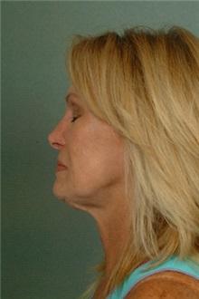 Facelift Before Photo by Robert Zubowski, MD; Paramus, NJ - Case 23722