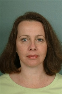 Facelift After Photo by Robert Zubowski, MD; Paramus, NJ - Case 23724