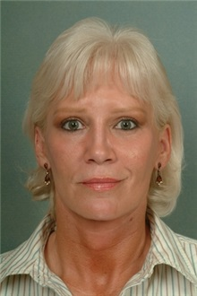 Facelift After Photo by Robert Zubowski, MD; Paramus, NJ - Case 23729
