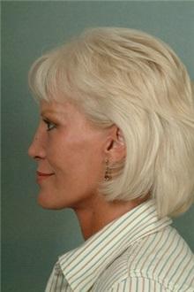 Facelift After Photo by Robert Zubowski, MD; Paramus, NJ - Case 23729