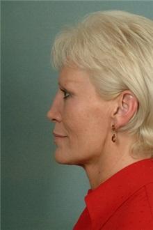 Facelift Before Photo by Robert Zubowski, MD; Paramus, NJ - Case 23729