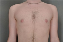 Male Breast Reduction After Photo by Robert Zubowski, MD; Paramus, NJ - Case 23737