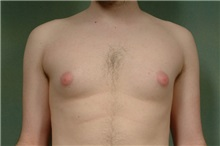 Male Breast Reduction Before Photo by Robert Zubowski, MD; Paramus, NJ - Case 23737