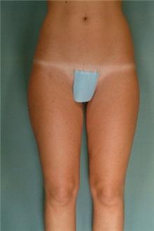 Liposuction After Photo by Robert Zubowski, MD; Paramus, NJ - Case 23738