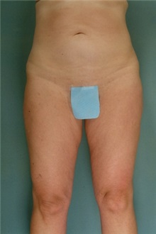 Liposuction After Photo by Robert Zubowski, MD; Paramus, NJ - Case 23798