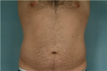 Liposuction After Photo by Robert Zubowski, MD; Paramus, NJ - Case 23800