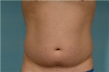 Liposuction Before Photo by Robert Zubowski, MD; Paramus, NJ - Case 23800