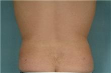 Liposuction After Photo by Robert Zubowski, MD; Paramus, NJ - Case 23800