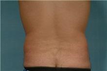 Liposuction Before Photo by Robert Zubowski, MD; Paramus, NJ - Case 23800