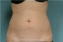 Liposuction Before Photo by Robert Zubowski, MD; Paramus, NJ - Case 23801