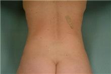 Liposuction After Photo by Robert Zubowski, MD; Paramus, NJ - Case 23803