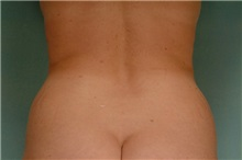 Liposuction Before Photo by Robert Zubowski, MD; Paramus, NJ - Case 23803