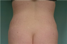 Liposuction After Photo by Robert Zubowski, MD; Paramus, NJ - Case 23810