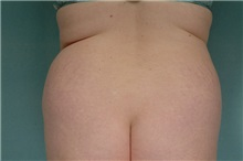 Liposuction Before Photo by Robert Zubowski, MD; Paramus, NJ - Case 23810
