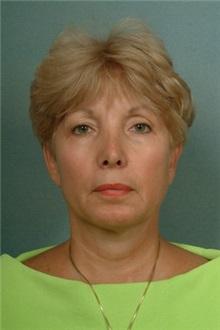 Liposuction After Photo by Robert Zubowski, MD; Paramus, NJ - Case 23811