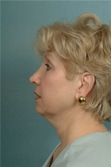 Liposuction Before Photo by Robert Zubowski, MD; Paramus, NJ - Case 23811
