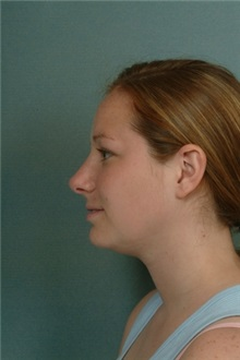 Rhinoplasty After Photo by Robert Zubowski, MD; Paramus, NJ - Case 23822