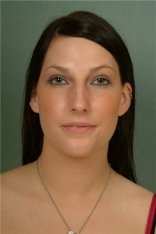 Rhinoplasty Before Photo by Robert Zubowski, MD; Paramus, NJ - Case 23826