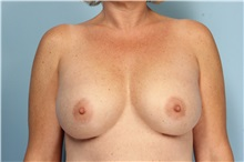 Breast Augmentation After Photo by Robert Zubowski, MD; Paramus, NJ - Case 33377