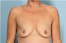 Breast Augmentation Before Photo by Robert Zubowski, MD; Paramus, NJ - Case 33377