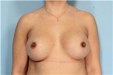 Breast Augmentation After Photo by Robert Zubowski, MD; Paramus, NJ - Case 33389