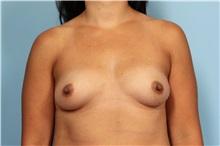Breast Augmentation Before Photo by Robert Zubowski, MD; Paramus, NJ - Case 33389