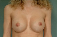 Breast Augmentation After Photo by Robert Zubowski, MD; Paramus, NJ - Case 33392