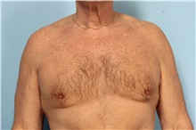Male Breast Reduction After Photo by Robert Zubowski, MD; Paramus, NJ - Case 33405