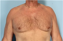 Male Breast Reduction Before Photo by Robert Zubowski, MD; Paramus, NJ - Case 33405