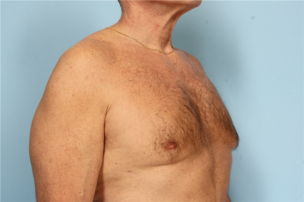 ... Male Breast Reduction After Photo by Robert Zubowski, MD; Paramus, NJ -  Case