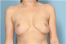 Breast Reduction After Photo by Robert Zubowski, MD; Paramus, NJ - Case 33429