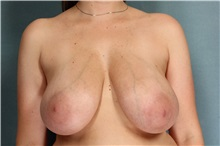 Breast Reduction Before Photo by Robert Zubowski, MD; Paramus, NJ - Case 33429