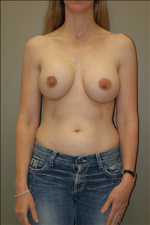 Breast Augmentation After Photo by Michael Epstein, MD; Northbrook, IL - Case 23719