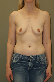 Breast Augmentation Before Photo by Michael Epstein, MD; Northbrook, IL - Case 23719