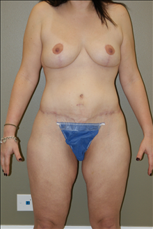 Breast Lift After Photo by Michael Epstein, MD; Northbrook, IL - Case 23739