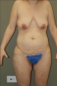 Breast Lift Before Photo by Michael Epstein, MD; Northbrook, IL - Case 23739