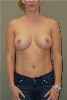 Breast Augmentation After Photo by Michael Epstein, MD; Northbrook, IL - Case 23742