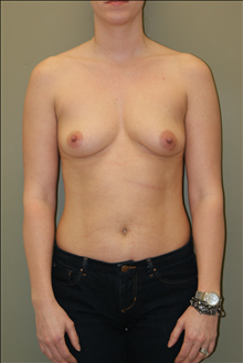Breast Augmentation Before Photo by Michael Epstein, MD; Northbrook, IL - Case 23742