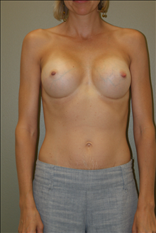 Breast Augmentation After Photo by Michael Epstein, MD; Northbrook, IL - Case 23751