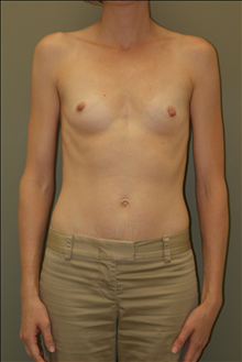 Breast Augmentation Before Photo by Michael Epstein, MD; Northbrook, IL - Case 23751