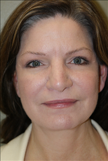 Facelift After Photo by Michael Epstein, MD; Northbrook, IL - Case 23752