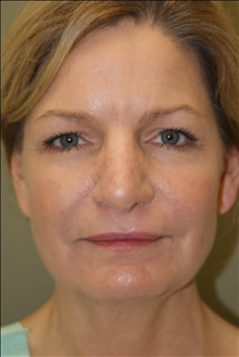 Facelift Before Photo by Michael Epstein, MD; Northbrook, IL - Case 23752