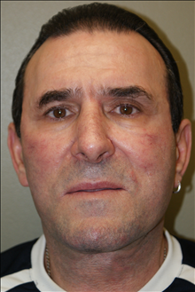 Facelift After Photo by Michael Epstein, MD; Northbrook, IL - Case 23754