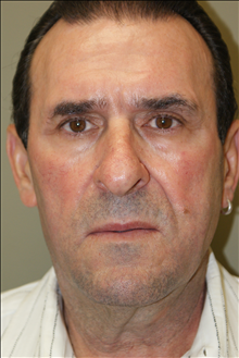 Facelift Before Photo by Michael Epstein, MD; Northbrook, IL - Case 23754