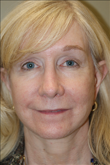 Facelift After Photo by Michael Epstein, MD; Northbrook, IL - Case 23756