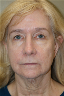 Facelift Before Photo by Michael Epstein, MD; Northbrook, IL - Case 23756