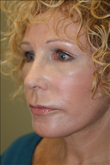 Rhinoplasty After Photo by Michael Epstein, MD; Northbrook, IL - Case 23765