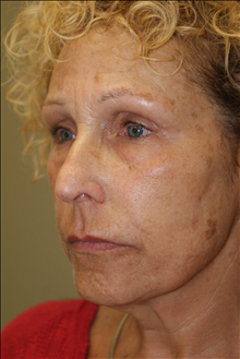 Rhinoplasty Before Photo by Michael Epstein, MD; Northbrook, IL - Case 23765